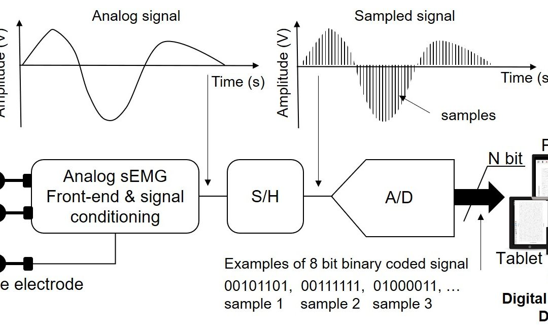 Tutorial. Surface EMG detection, conditioning and pre-processing: Best practices